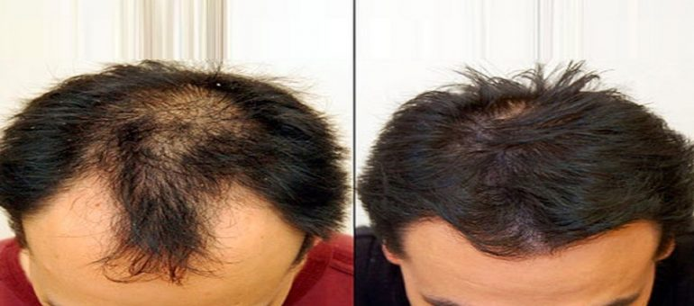 how-to-choice-the-precise-hair-transplant-physician